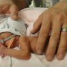 I neonati prematuri sono più sensibili al dolore.