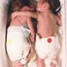 L'abbraccio di due gemelle premature